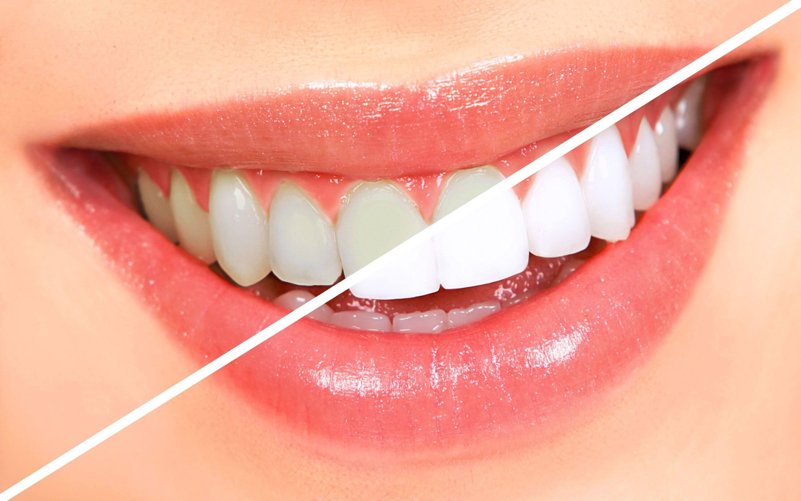 Blanqueamiento dental Reus