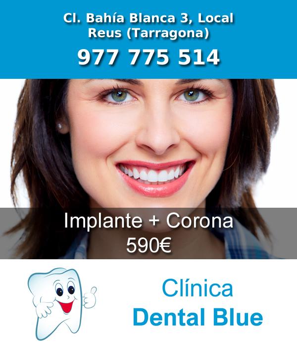 tratamiento implante con corona