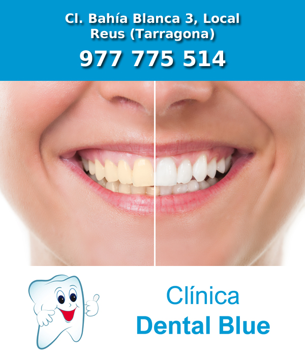 CLINICA BLANQUEAMIENTO DENTAL