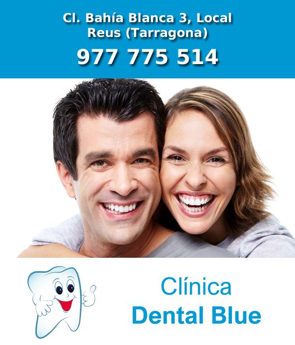 Clinica de implantes dentales