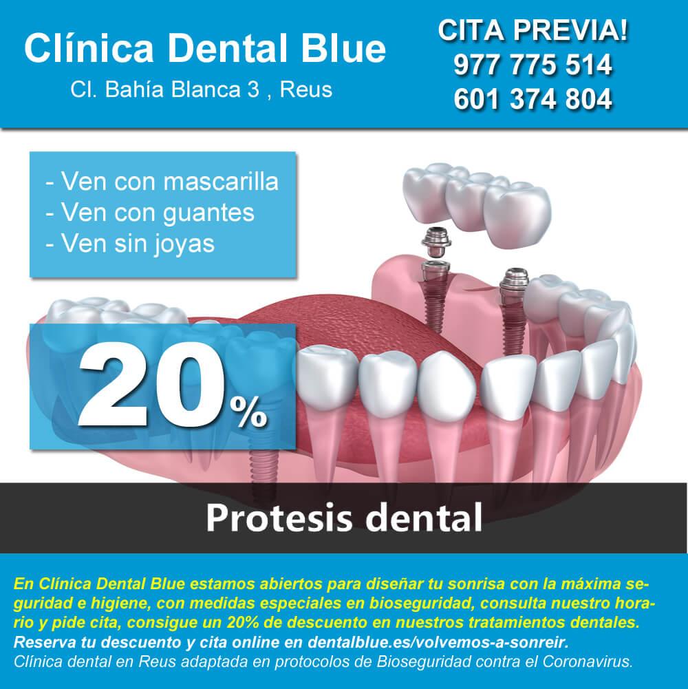Protesis dental reus