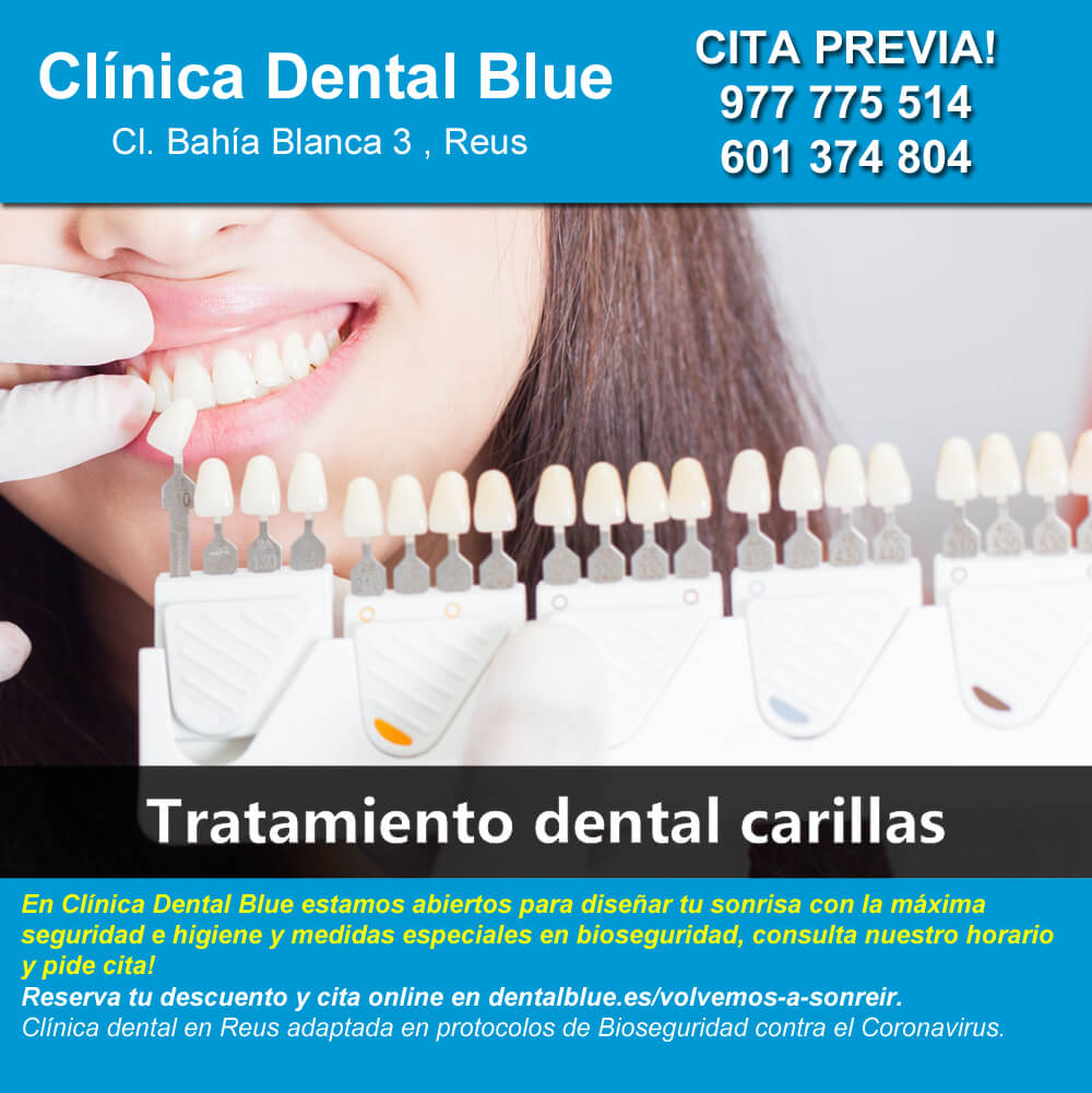 Tratamiento dental carillas