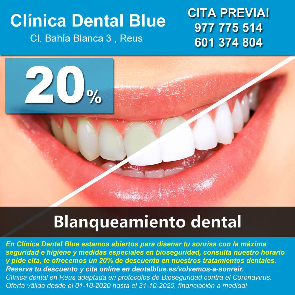 Tratamiento dental blanqueamiento