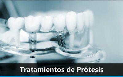 Tratamientos de Prótesis