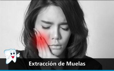 Extracción de muelas
