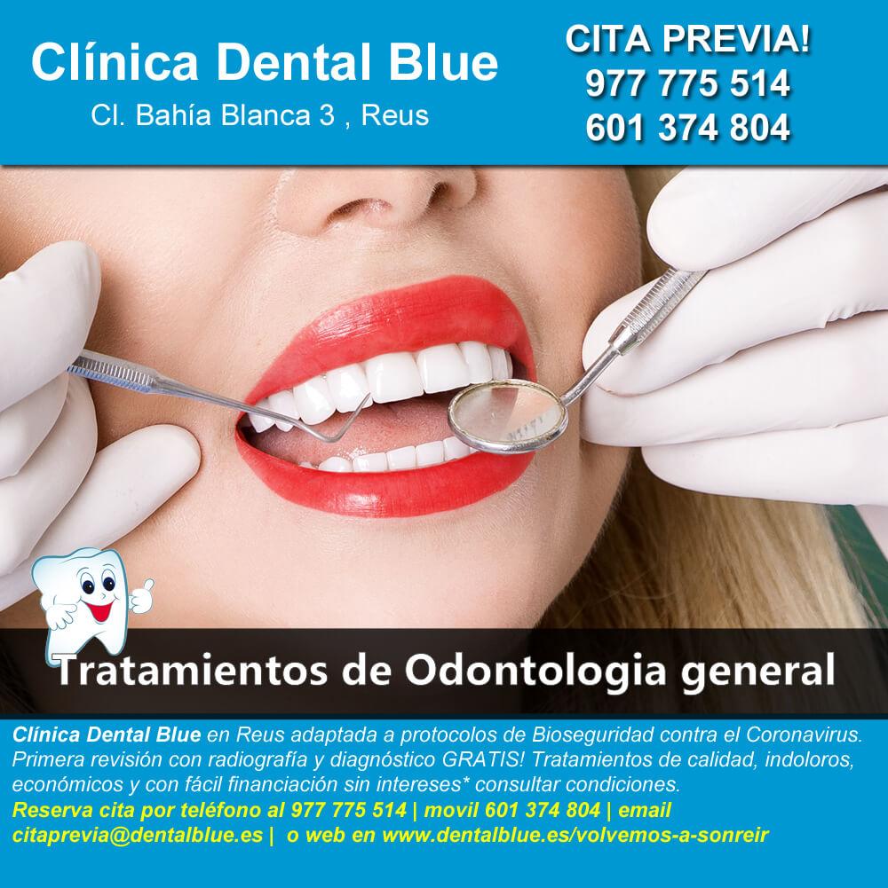 Tratamientos de odontologia general