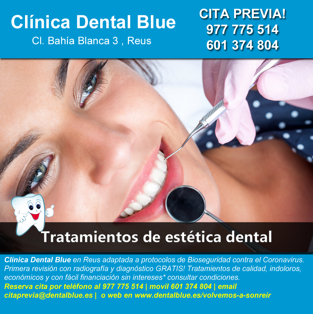 Tratamientos de estetica dental