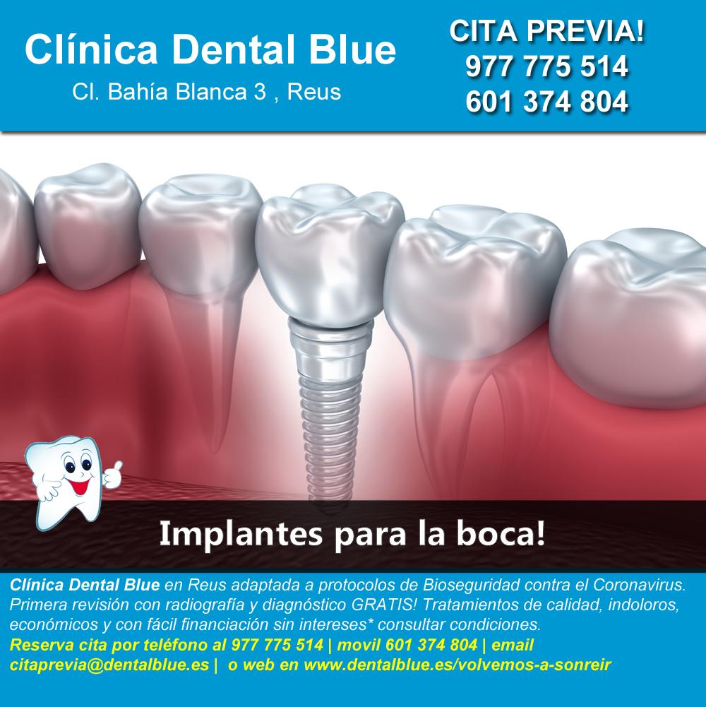 Implantes para la boca